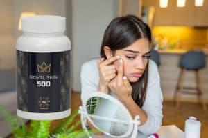 royal skin 500 opinie